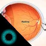 imagem seccional do globo ocular