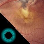 lesão de doenças inflamatórias (toxoplasmose) na retina humana 3