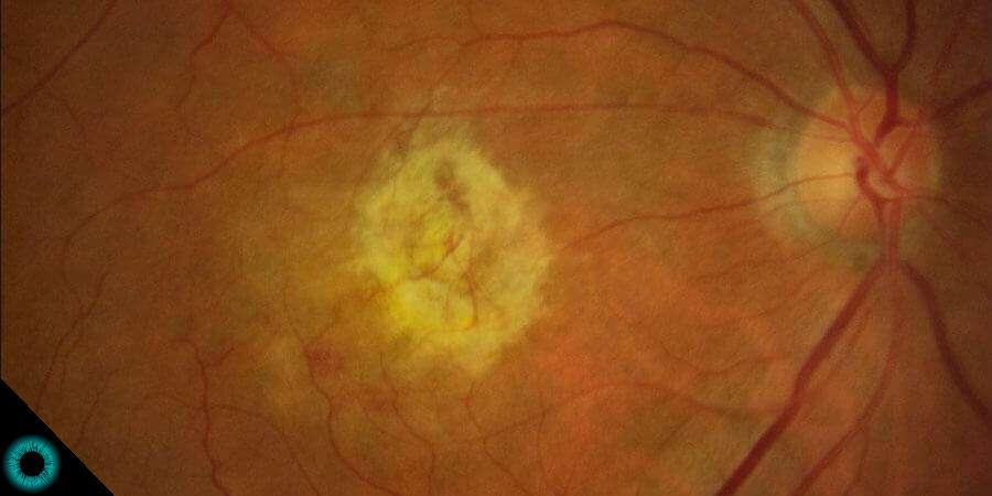 Foto da retina mostrando uma degeneração macular 1