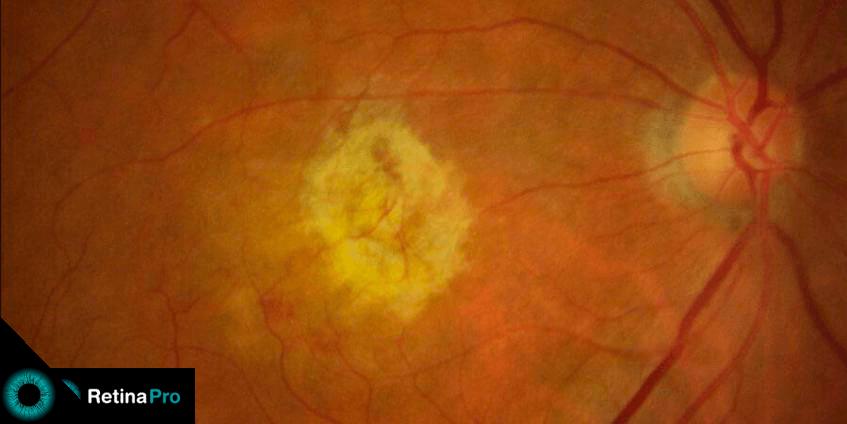 Foto da retina mostrando uma degeneração macular relacionada a idade.