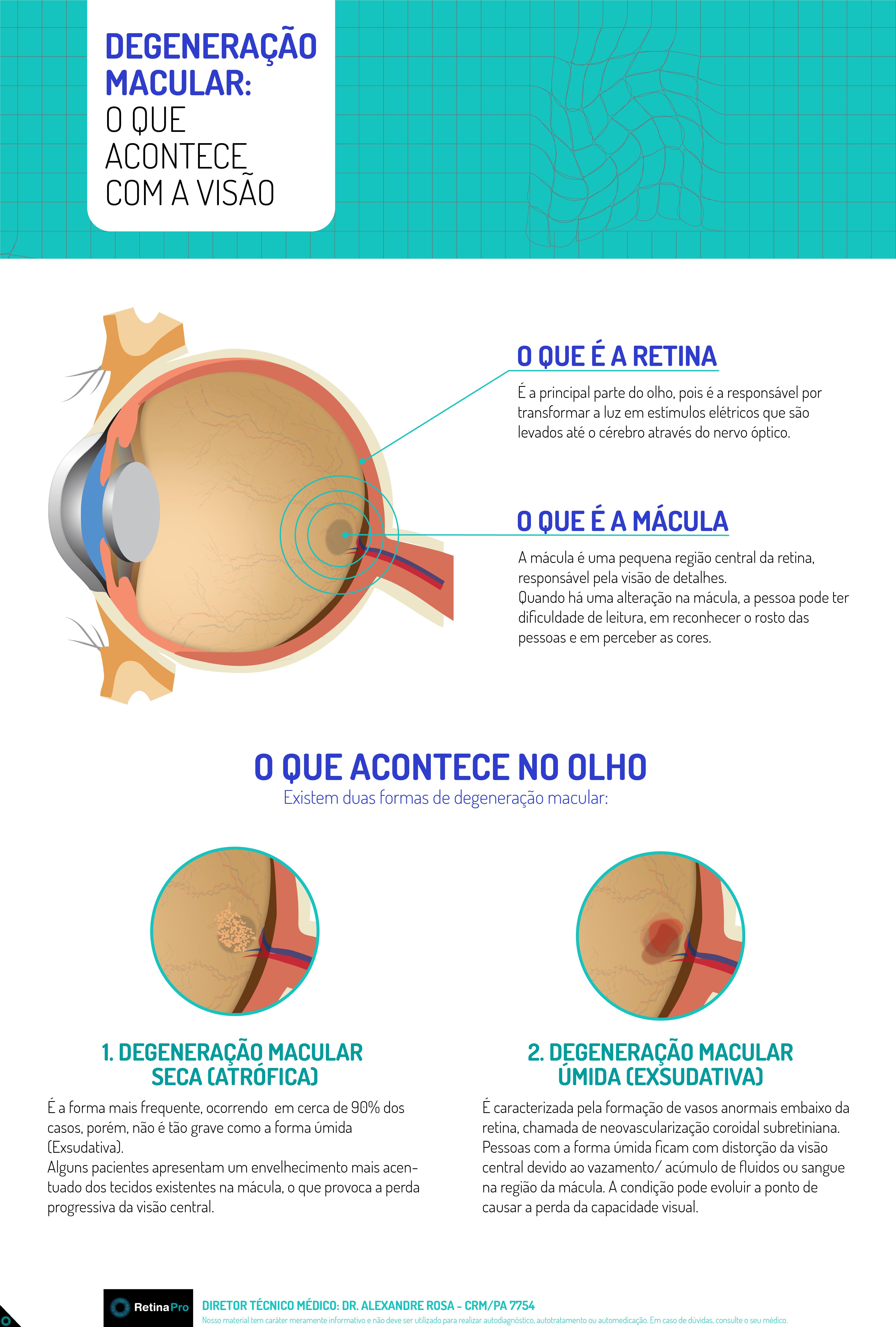 Infograifco sobre degeneração macular