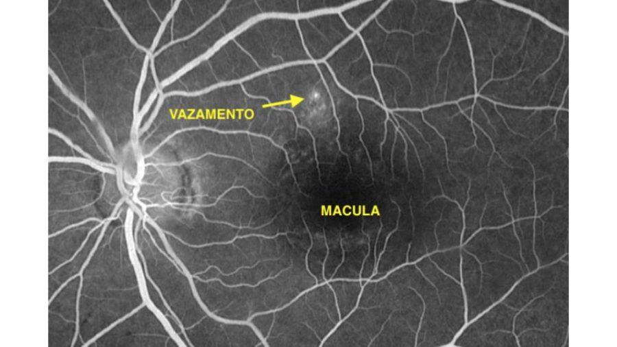 Imagem de um exame de angiofluorescenografia. O corante esta circulando dentro dos vasos da retina. Podemos observar um ponto de vazamento (seta) que corresponde ao local a ser tratado pelo laser.
