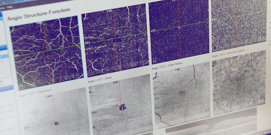 Angiotomografia de retina (OCT Angiography)