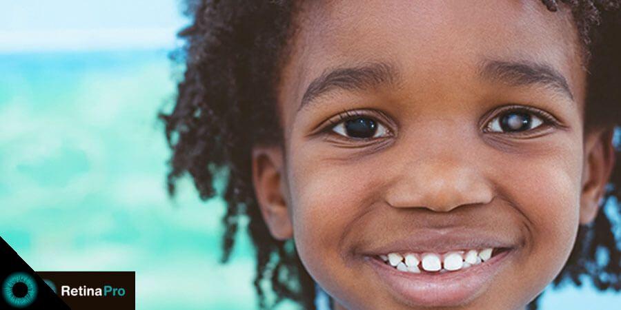 f4ccf8b89 retinoblastoma-conheca-o-tumor-ocular-mais-comum-em-