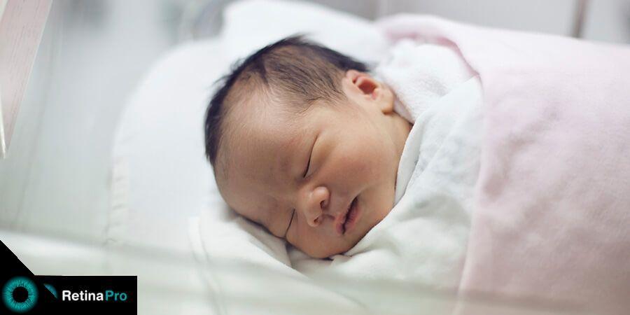 criança com retinopatia da prematuridade