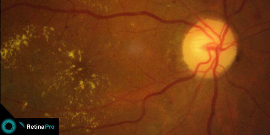 Injeção de corticoide intravítreo para edema macular diabético