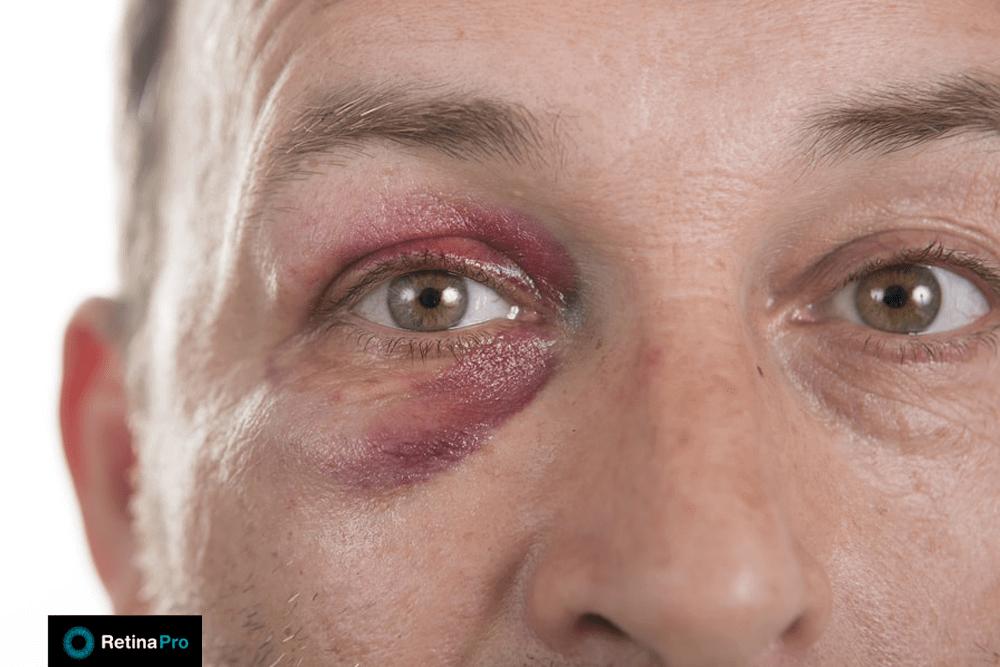 imagem uma pessoa com inchaço nas pálpebras após trauma no olho.