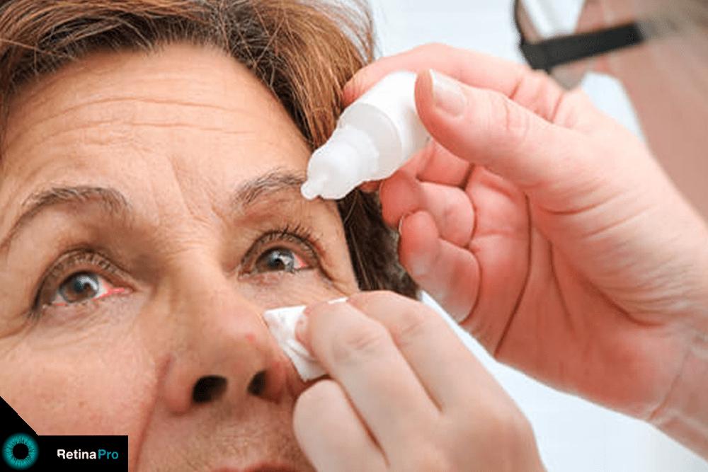 pessoa instilando colírio lubrificante em paciente com olho seco.