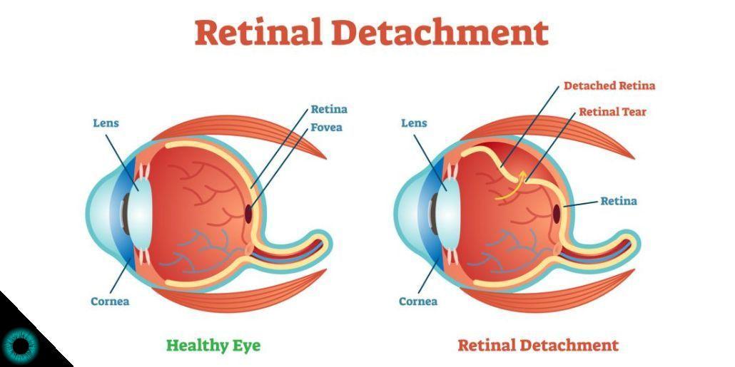 O que é retinopexia pneumática?