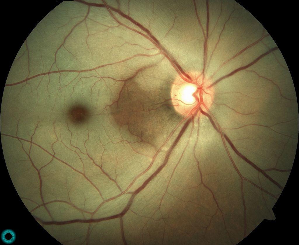 Imagem de um fundo de olho mostrando macula em cereja.