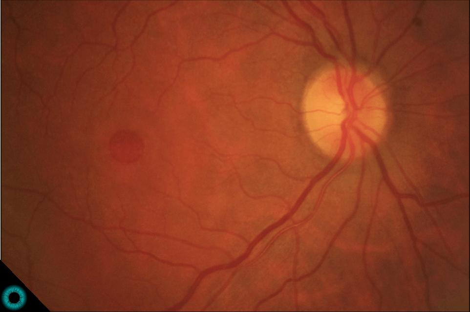 Fotografia de fundo de olho (retinografia) onde observamos uma lesão arredondada central característica do buraco macular.