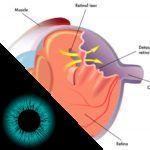 Introflexão escleral: como tratar o descolamento de retina!