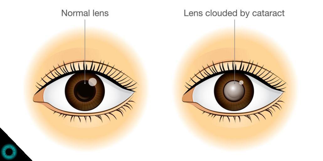 Ilustração monstrando um olho normal e um com catarata.