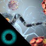 Entenda a neurite óptica e sua relação com a esclerose múltipla