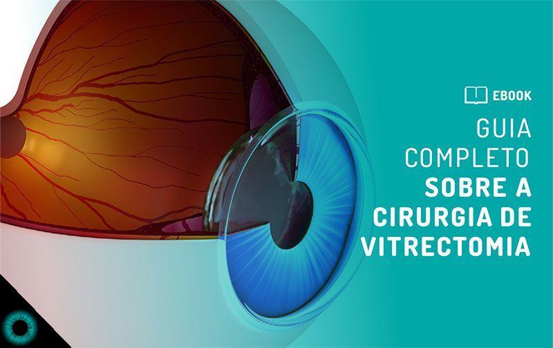 Guia completo sobre a Cirurgia de Vitrectomia