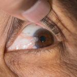Você conhece o pterígio? Veja os sintomas e tratamento da carne no olho