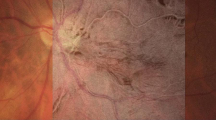 Fotografia do fundo de olho mostrando o enrugamento da retina causado pela membrana epiretiniana.