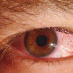 Sífilis ocular: conheça 4 problemas que causados na visão