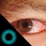 Ardor nos olhos e sintomas associados: respondemos as suas dúvidas