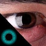 5 causas que podem deixar o olho vermelho, dolorido ou inchado
