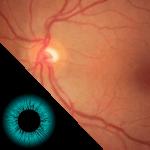 retinografia-colorida imagem do-exame-oftalmologico